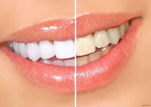 какие существуют технологии отбеливания зубов, используемые в клиниках города Сургута