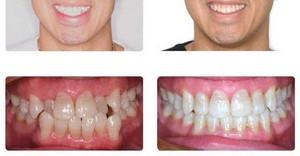 лечение зубов до и после