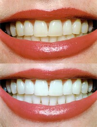 отбеливание зубов сургут