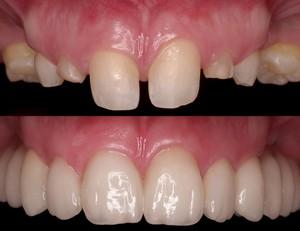 Реставрация зубов при помощи коронок